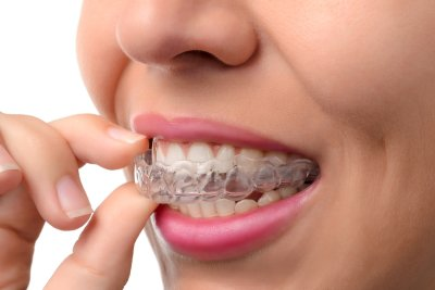 dental - invisalign